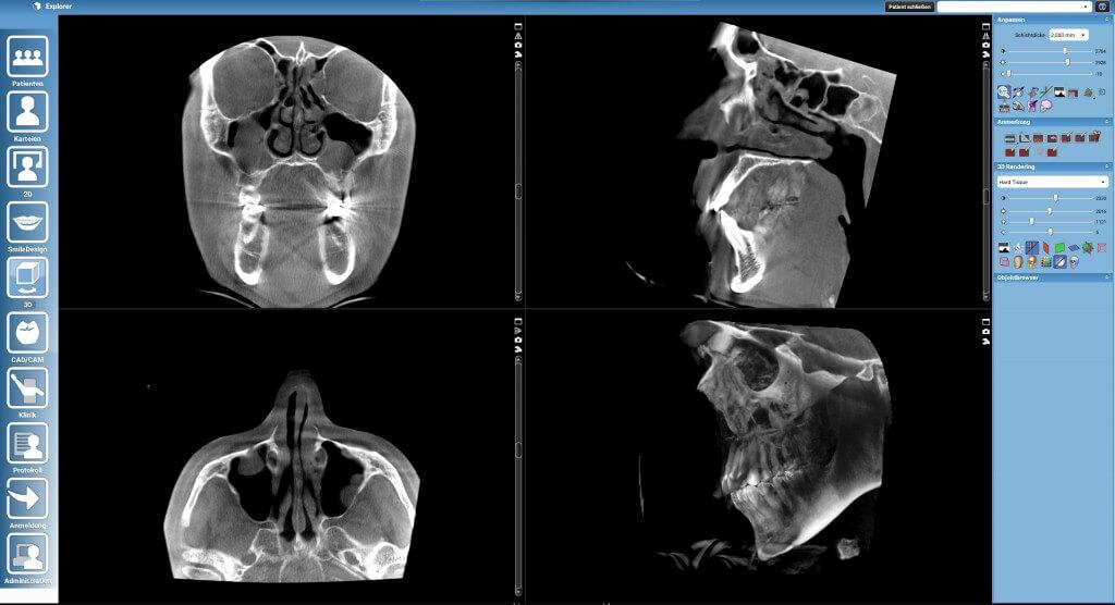 h22_maxillofacial
